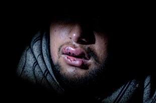 Europa schweigt zu schrecklichen Szenen an der kroatischen Grenze