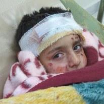 Les enfants sont les premières victimes des bombardements. © AI